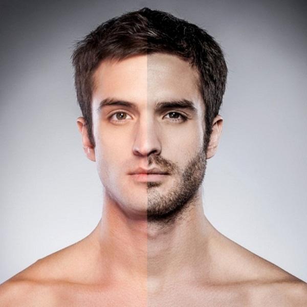 Biến chứng 'chết người' vì trào lưu cấy râu thể hiện sự nam tính
